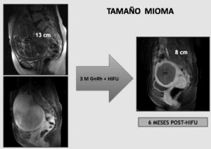 Tratamiento de mioma de 13 cm utilizando 3 meses de análogos de Gn-Rh previos al tratamiento con ultrasonidos de alta intensidad (HIFU). Ablación completa.