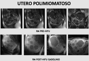 Figura 7. Aunque el aumento del número de miomas dificulta el tratamiento, en algunos casos es posible tratar úteros polimiomatosos. En este caso se observa la ablación completa de más de 10 miomas.