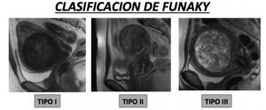 Clasificación de Funaky. Tipo I: isointenso respecto al músculo. Tipo II: ligeramente hiperintenso respecto al músculo.